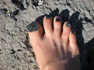 Bare foot with toes covered in obsidian rocks